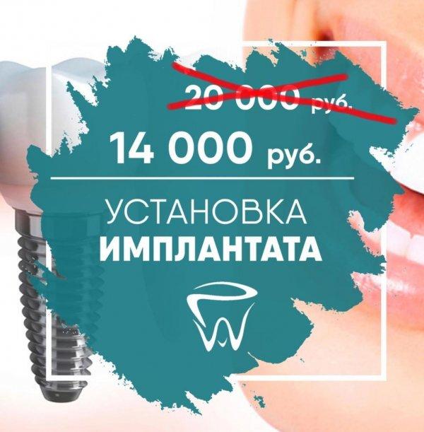 Установка инплантата всего за 14 000 р. вместо 20 000, 21 век, Владикавказ