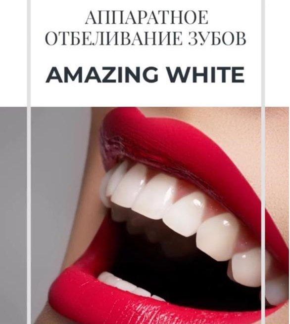 Скидка 15% на отбеливание зубов!, Real Clinic, Нальчик