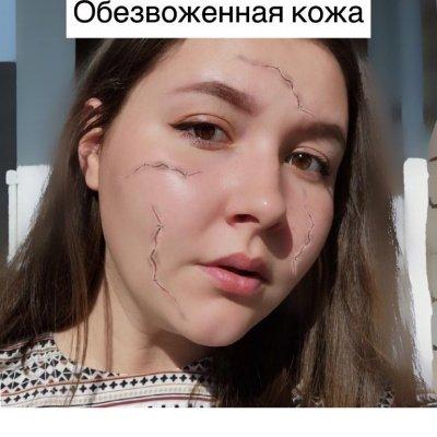 Обезвоженная кожа , Шанталь, Ижевск