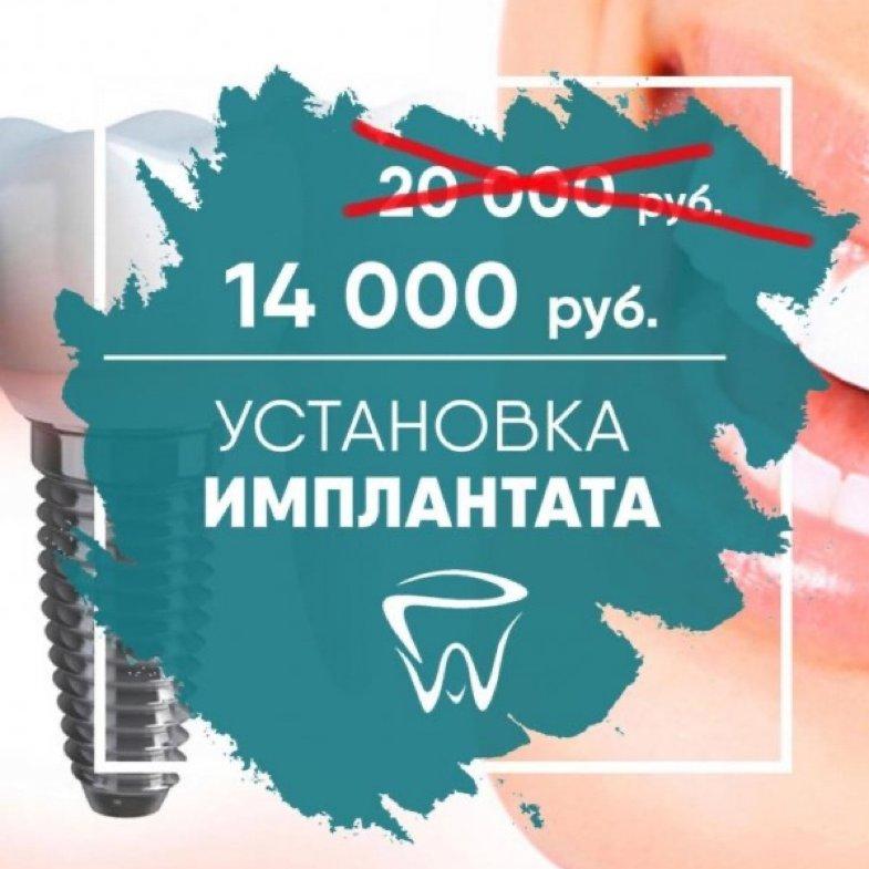 Установка имплантата всего за 14 000 р. вместо 20 000 р. , 21 век, Владикавказ