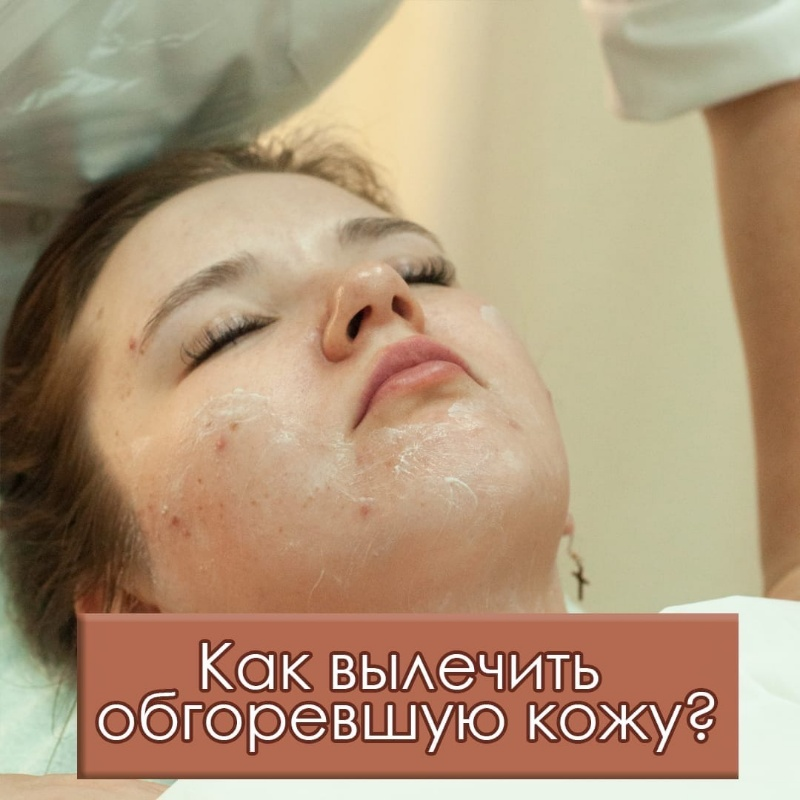 Как вылечить обгоревшую кожу?, Шанталь, Ижевск
