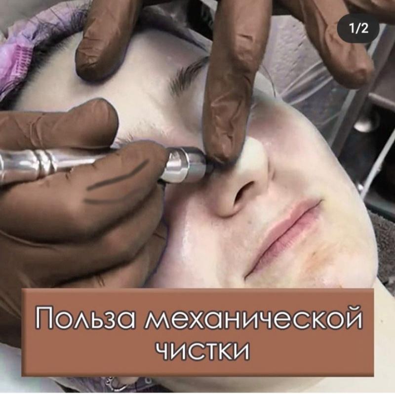 Чистка, Шанталь, Ижевск