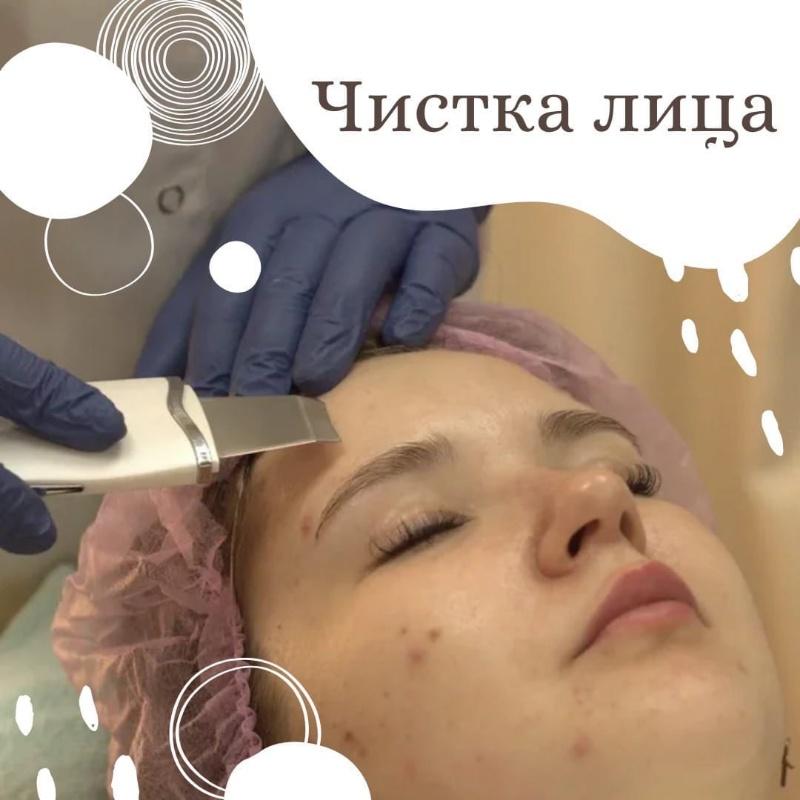 Чистка лица: какую выбрать?🤔, Шанталь, Ижевск
