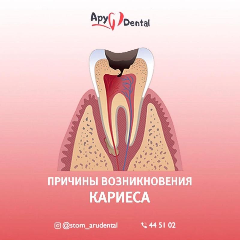Стомотологии в Актобе. Ару Дентал Актобе. Лечение удаление зубов в Актобе. Aru Dental Aktobe