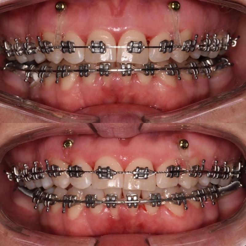 Устранение десневой улыбки при помощи ортодонтических мини имплантатов.