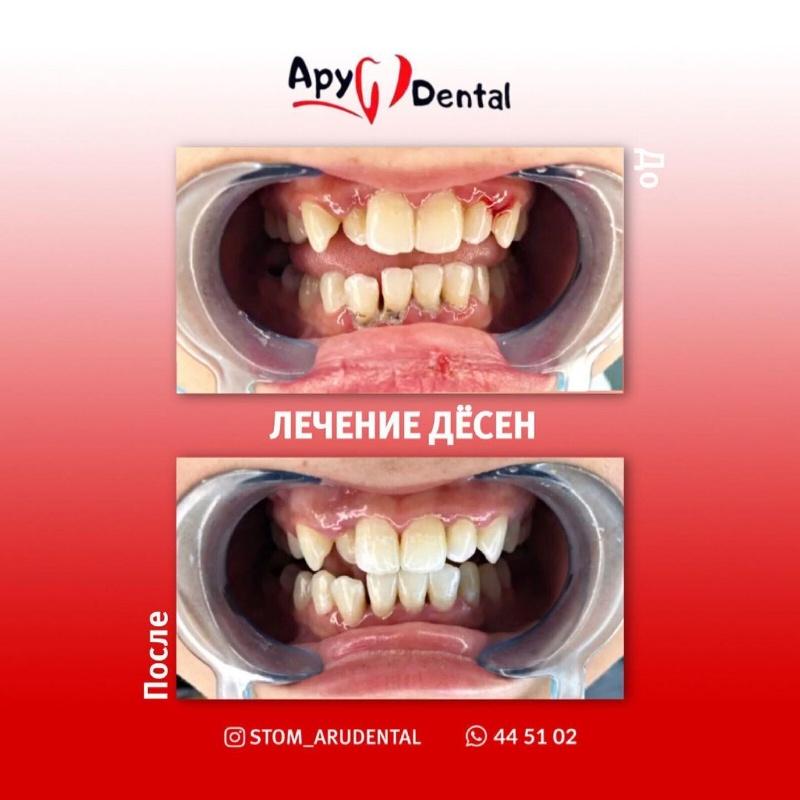 Ару Дентал Актобе. Aru Dental Aktobe. Стомотологии в Актобе. Лечение удаление зубов в Актобе