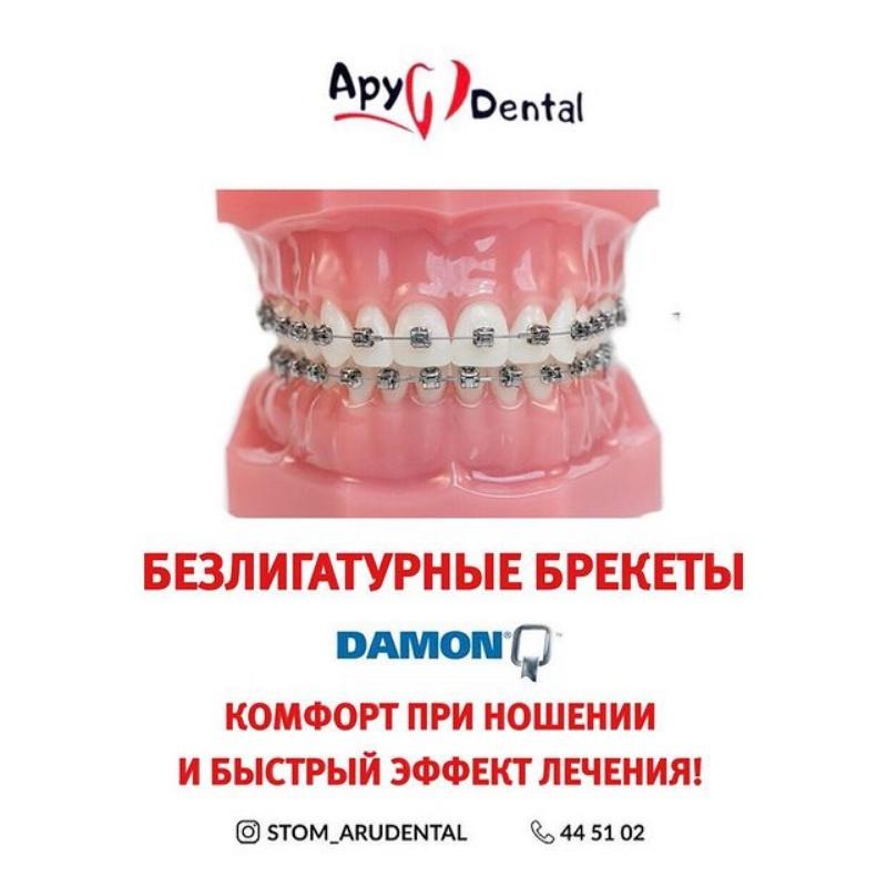 Aru Dental Aktobe стоматология в Актобе