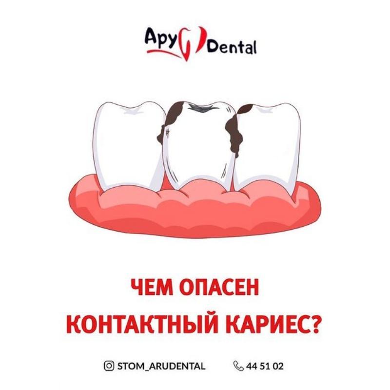 Стомотологии в Актобе Ару дентал Актобе